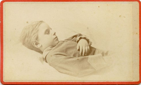 Post mortem CDV